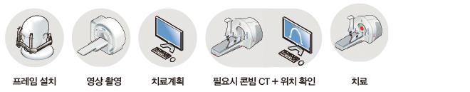 프레임설치, 영상촬영, 치료계히ㅗㄱ, 필요시 콘빔 CT+위치확인